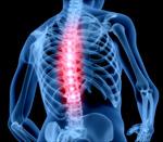 Сlipart Human Spine Backache Human Skeleton Osteoporosis Anatomy 3d  BillionPhotos