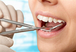 Сlipart Dentist Dental Hygiene Dentist Office Human Teeth Surgery   BillionPhotos