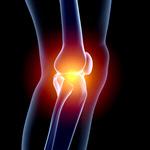 Сlipart Human Knee Pain Arthritis Human Joint X-ray 3d  BillionPhotos