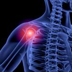 Сlipart Shoulder Pain Human Joint Anatomy Human Spine 3d  BillionPhotos